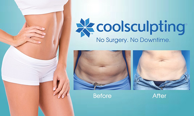 Is Coolsculpting Safe with Diabetes? | Ask D'Mine