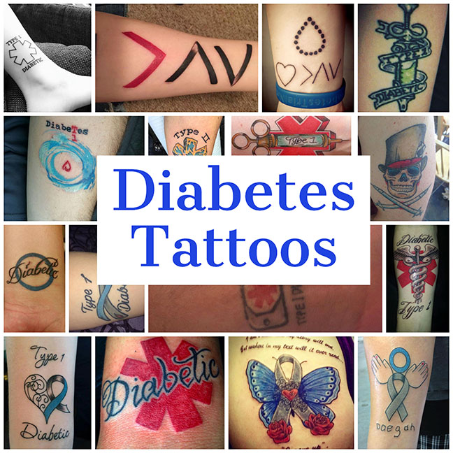 Getting Tattoos With Diabetes Diabetesmine
