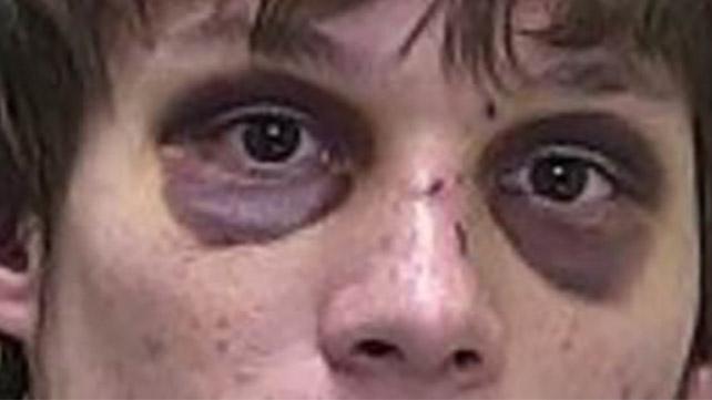 Raccoon Eyes: Basilar Skull Fracture and Treatment