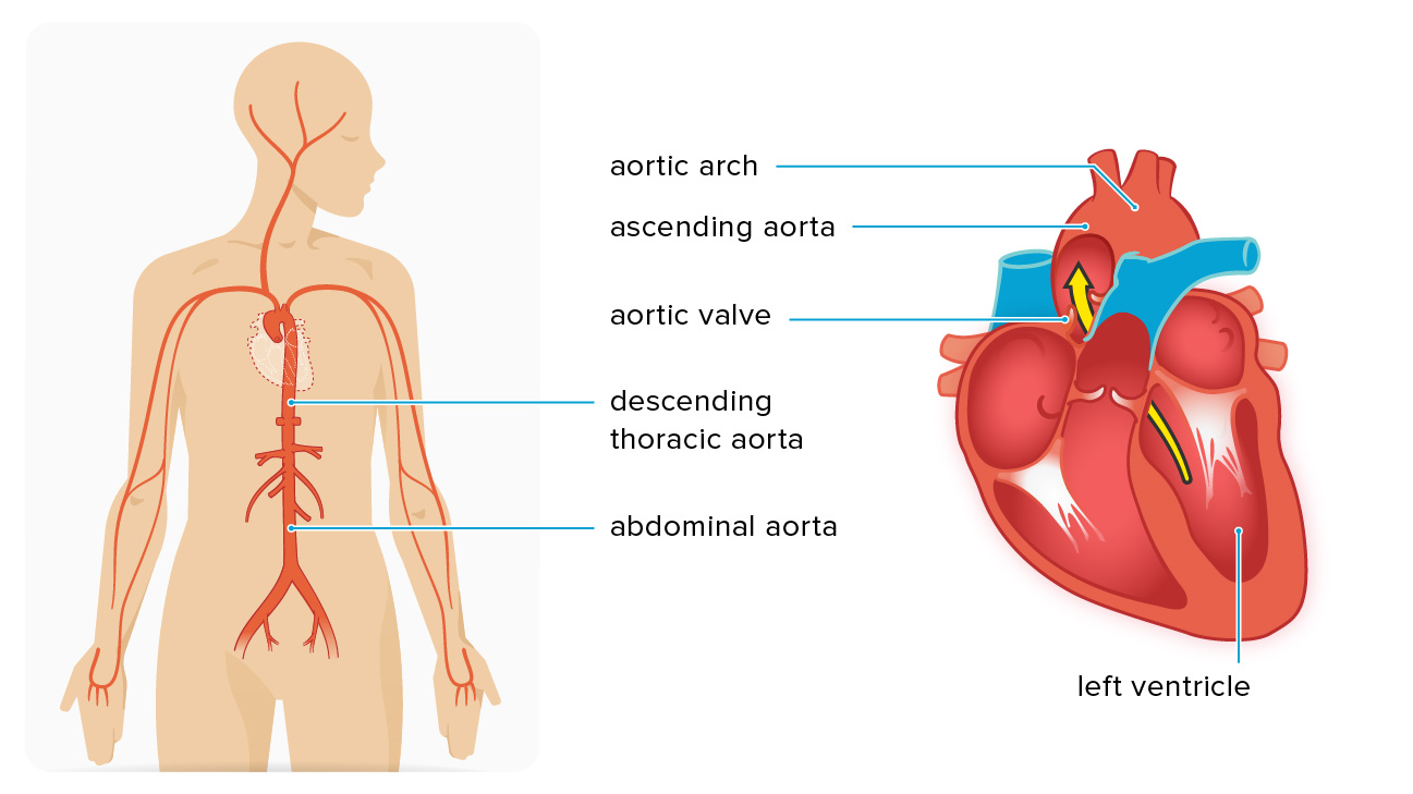 Ascending Aortic Aneurysm: Repair, Surgery, and Size Criteria