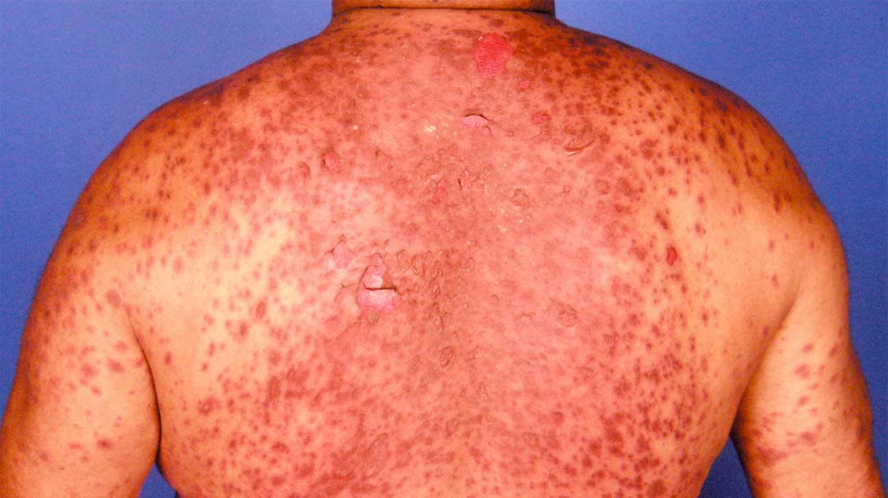 how to get rid of lamictal rash