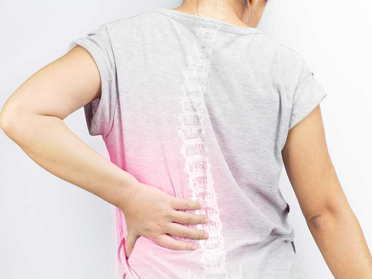 Disc Desiccation: Symptoms, Causes, and Treatment