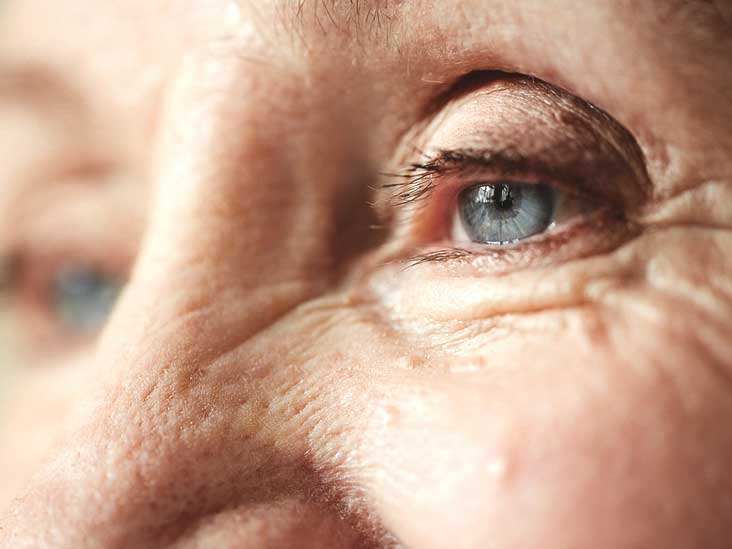 Double Eyelid: Surgical & Nonsurgical Options, Pictures