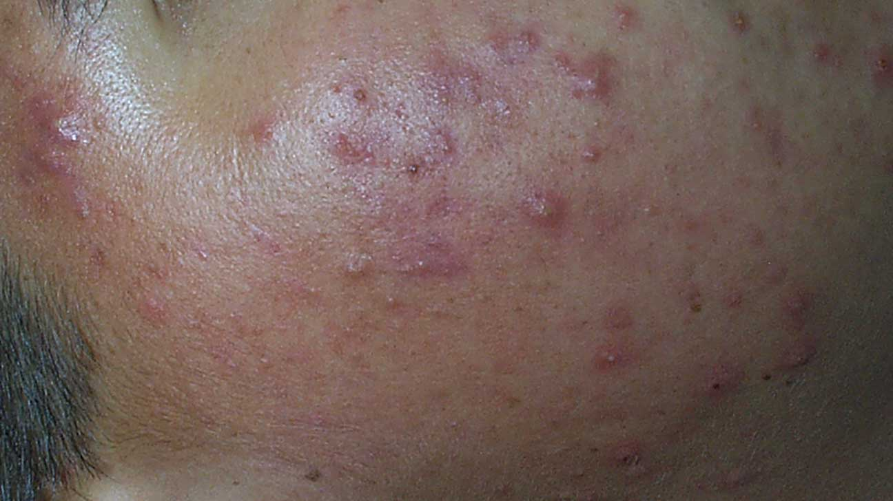 where are acne nodules