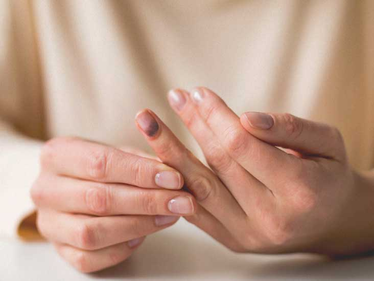 Swollen Fingertip: Causes, Treatment, When to Seek Help