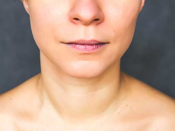 Lump Under Chin: Causes, Treatment, and More