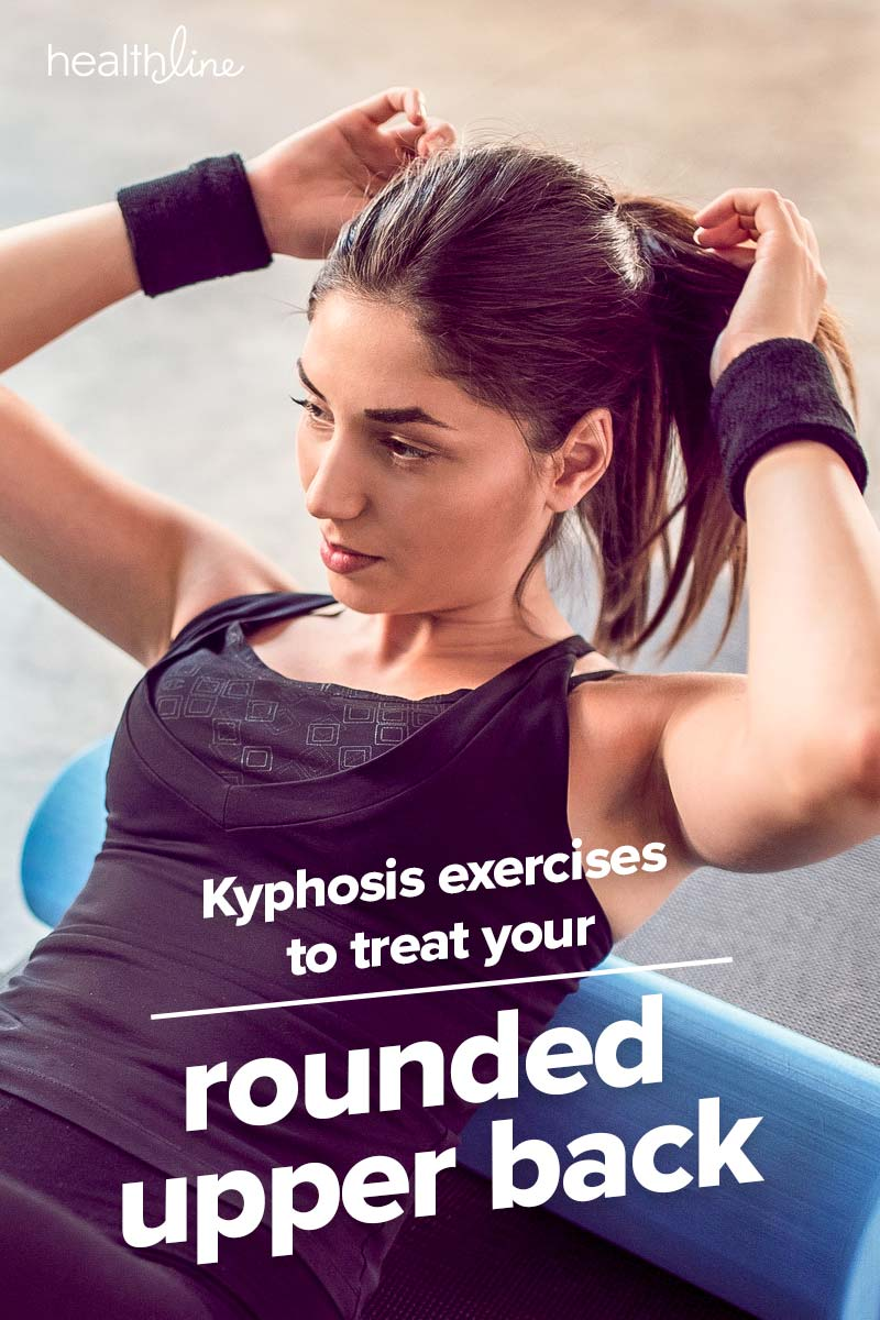 Kyphosis exercises treat a rounded upper back