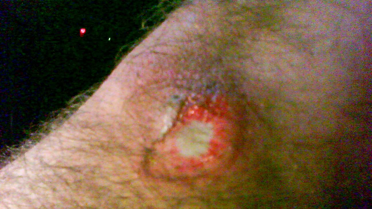 Rug Burn Scar On Back Picture