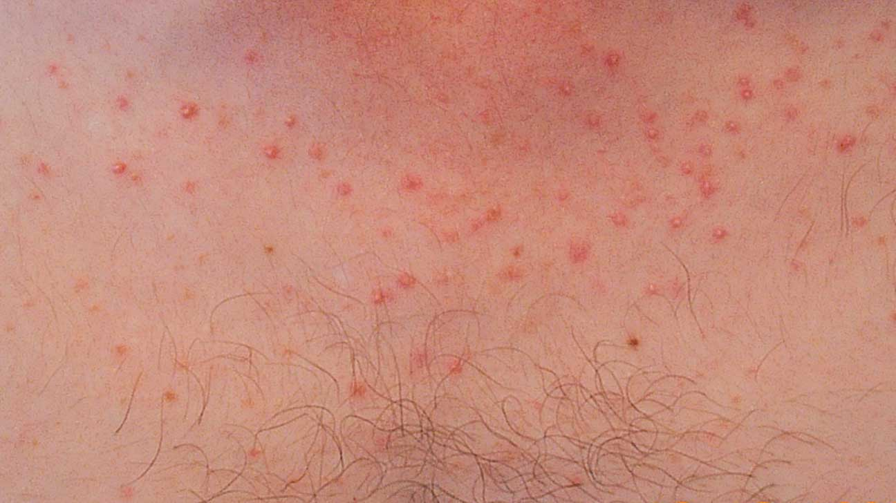Pityrosporum Folliculitis: Natural Treatment, Face, and More