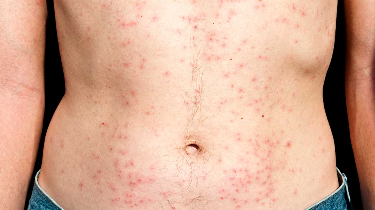 Chlorine Rash Treatment And Prevention