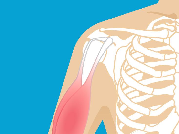 Armpit Lump  Causes  Diagnosis  And Treatment