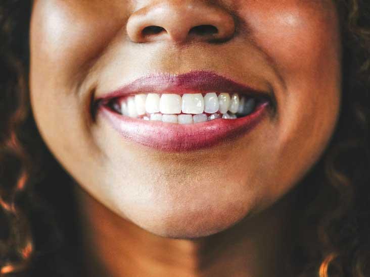How Do Braces Work to Straighten Your Teeth?