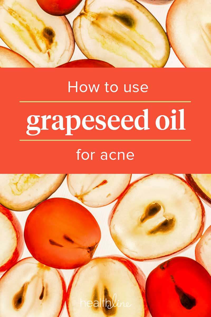 Grapeseed Oil for Acne Spots and Scars: Use, Products, and More