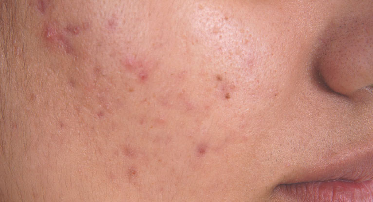 Blind Pimple Under the Skin: 6 Ways to Treat It