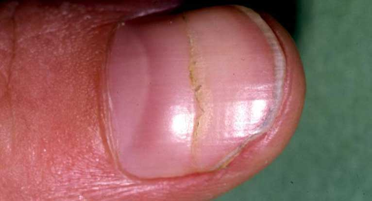 Cracked Nails: Causes, Repair & Prevention