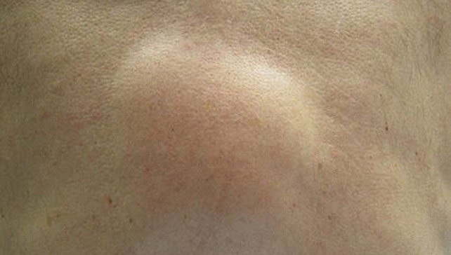 Image Result For Small White Raised Bump