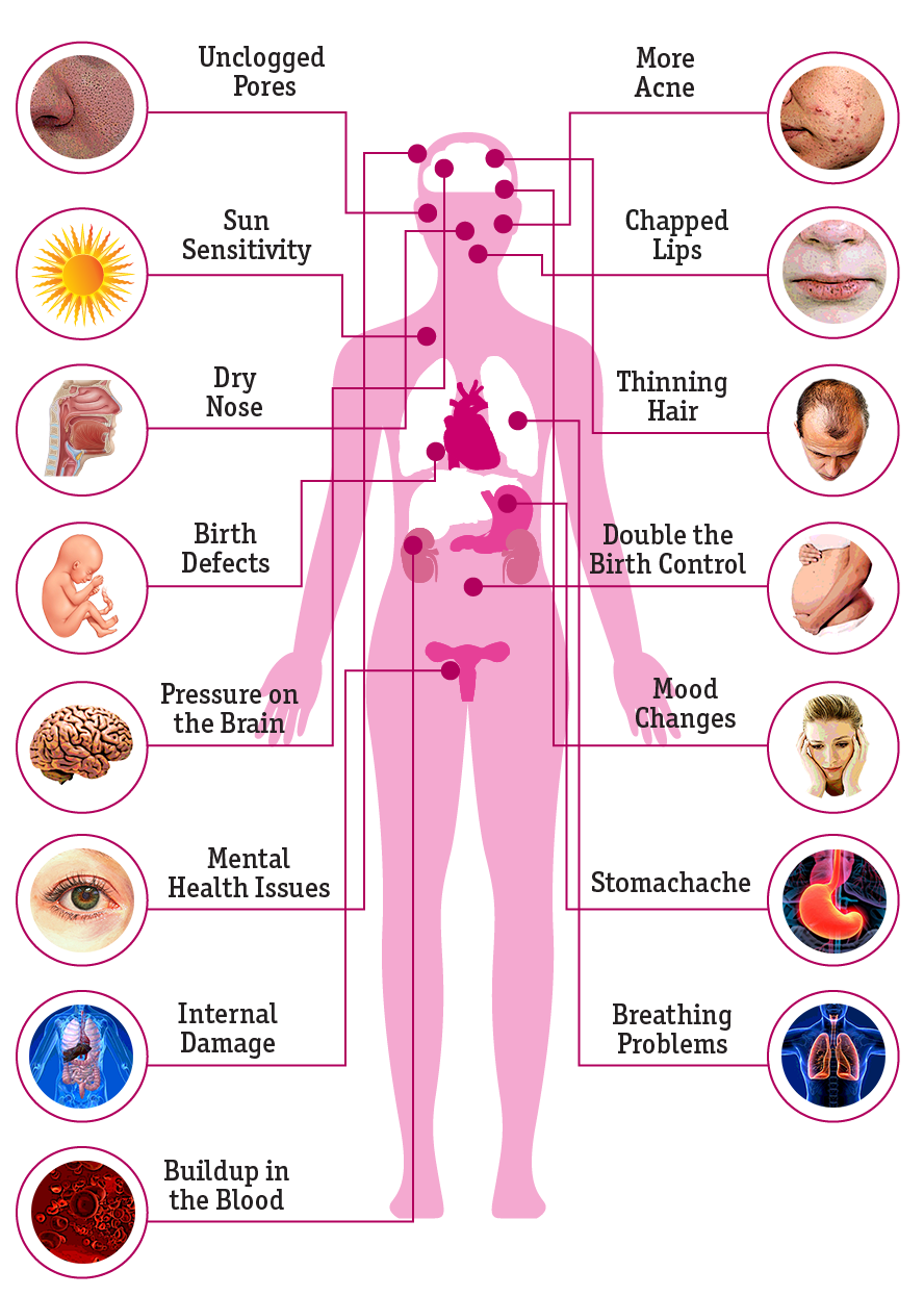 Accutane: What Are the Side Effects on the Body?