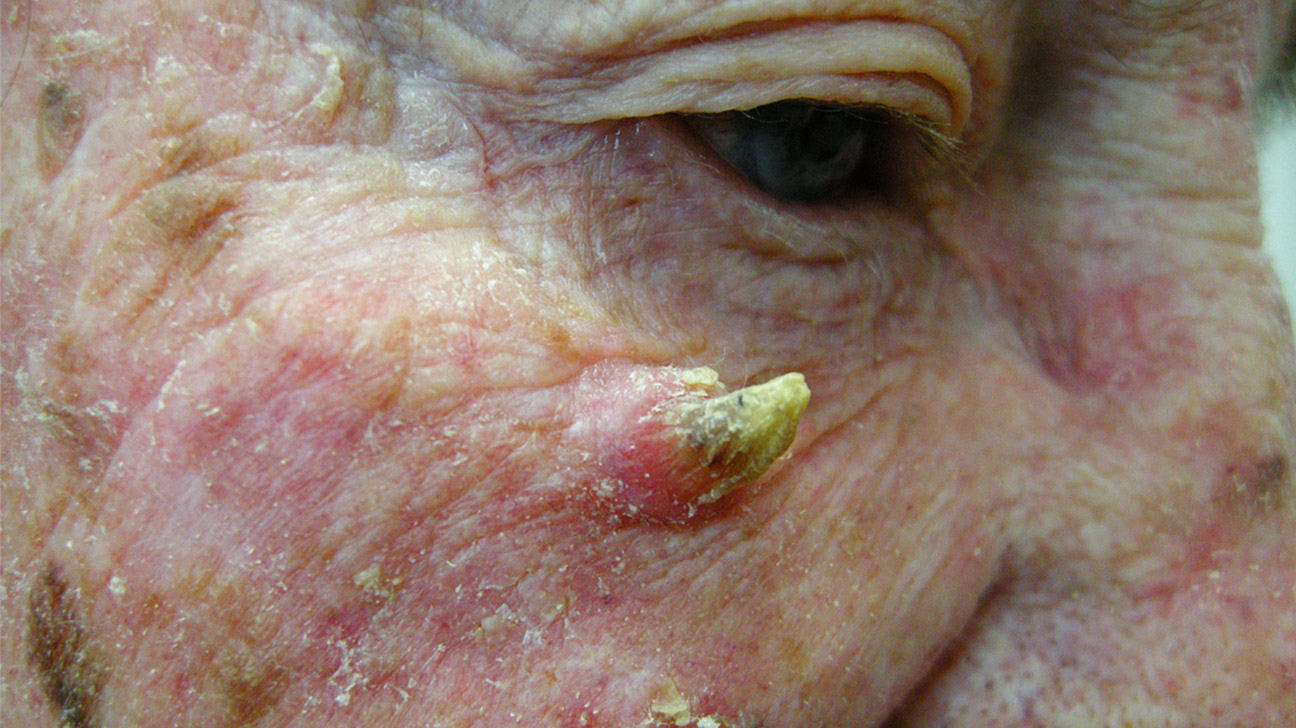 Cutaneous Horn: Pictures, Removal, Causes, and More