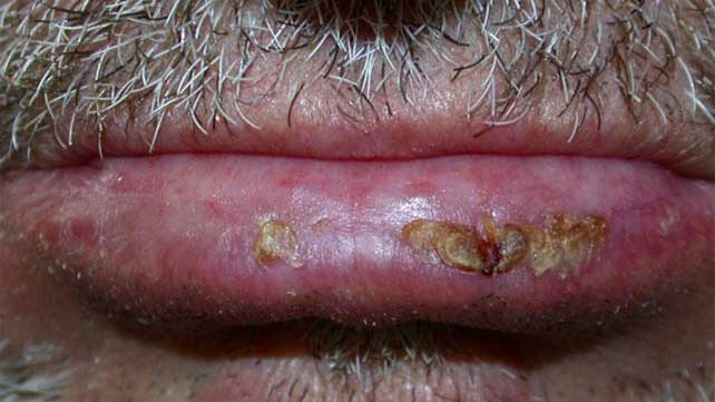 Actinic Cheilitis Symptoms Treatment Prevention And More