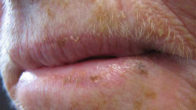 Actinic Cheilitis: Symptoms, Treatment, Prevention, and More