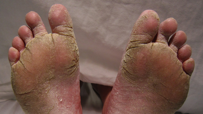 best treatment for severe athletes foot