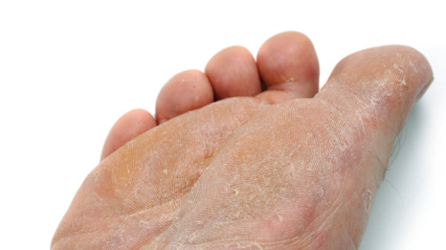 Athlete's Foot: Causes, Symptoms, and Diagnosis