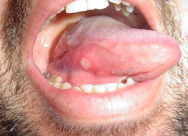 Canker Sore Treatments Causes And Symptoms