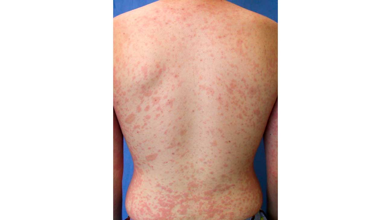 Pityriasis Rosea (Christmas Tree Rash) Pictures, Causes
