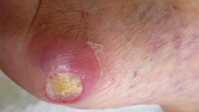 Pictures Of Diabetic Neuropathy