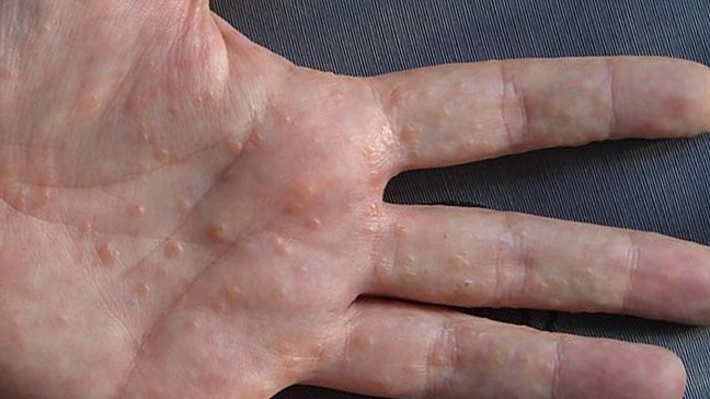 Itchy painful red spots on hands and feet