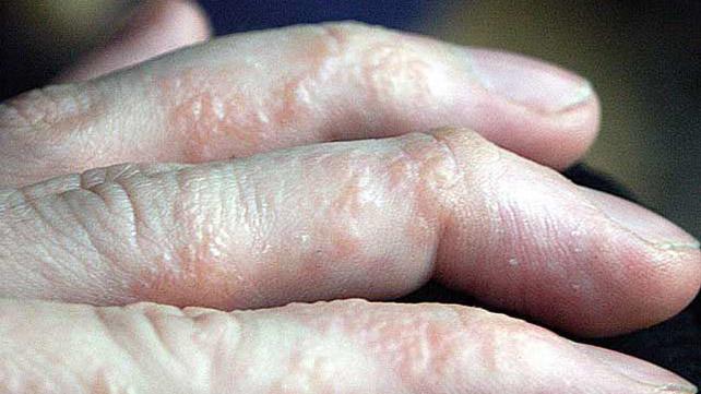 Contact dermatitis arms kezelése psoriasis