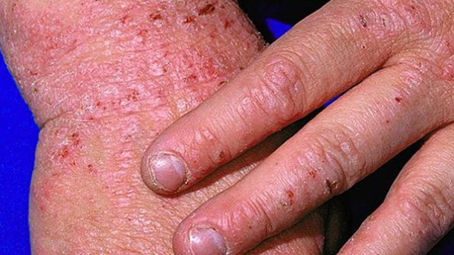 7 Types of Eczema: Symptoms, Causes, and Pictures