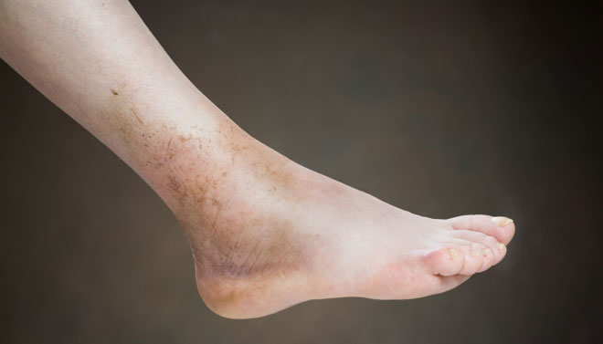 Leg Swelling: Causes and When to See a Doctor