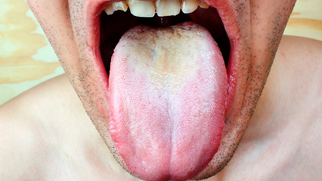Hiv symptoms mouth sores