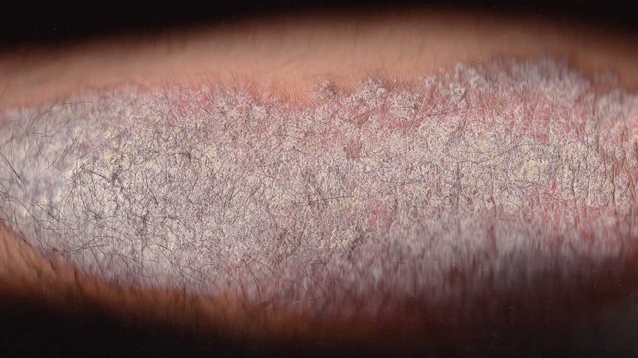 Is It Hives or Psoriasis? Learn the Signs