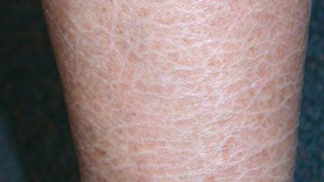 Ichthyosis Vulgaris Causes Symptoms And Diagnosis