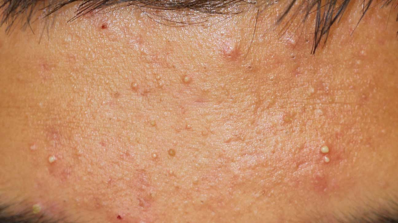 Inflamed Acne: Cystic Acne and Other Types, Plus How to Get