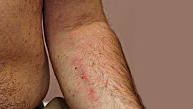 Pictures of Rashes and Bruises from Leukemia