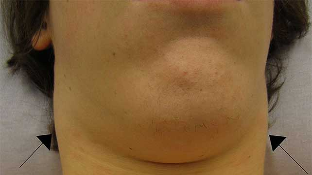 Lump Under Chin Causes Treatment And More