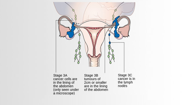 Ovarian Cancer In Pictures