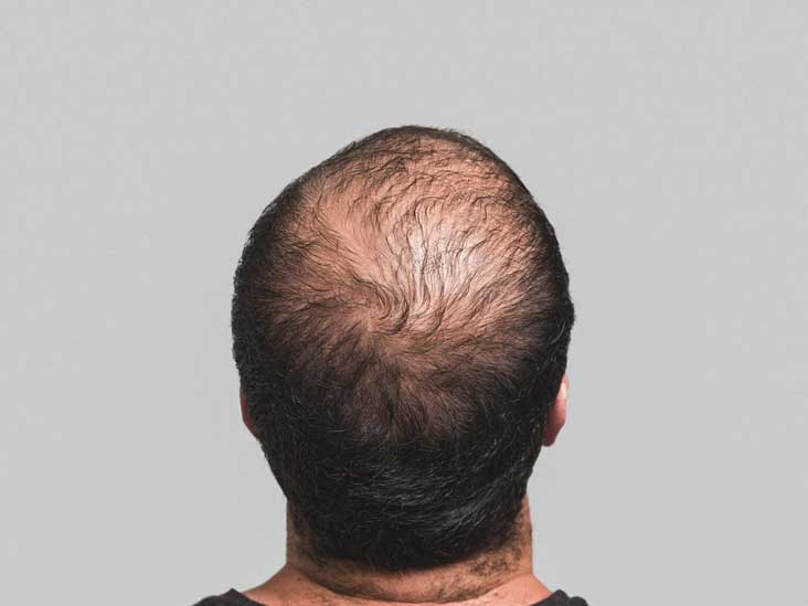 Stem Cell Hair Transplant: What Is It and When Will It Be