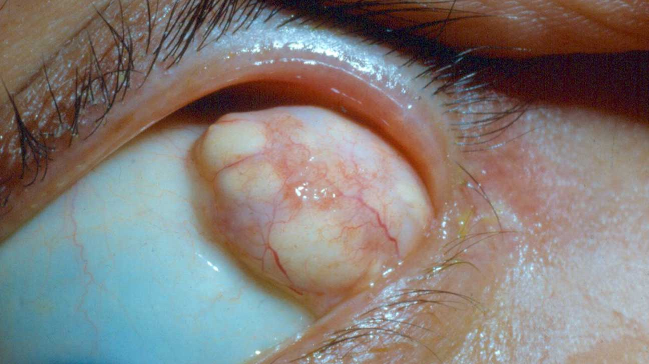 Dermoid Cyst: Types, Pictures, Symptoms, Treatment, Surgery