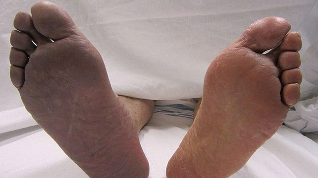 Peripheral Cyanosis: Symptoms, Causes, and Treatments
