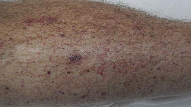 petechiae bruising