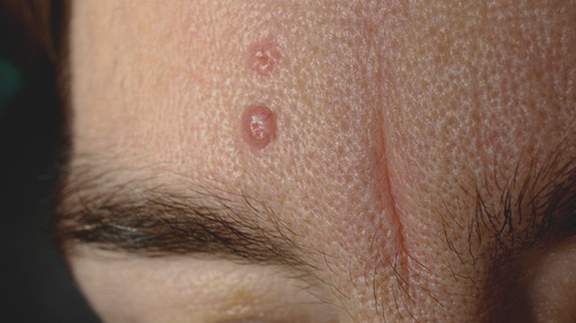 What Do HIV Skin Lesions Look Like