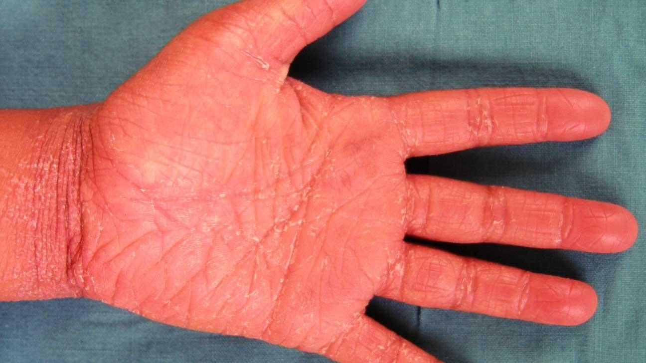 Pityriasis Rubra Pilaris: Symptoms, Treatments, and More
