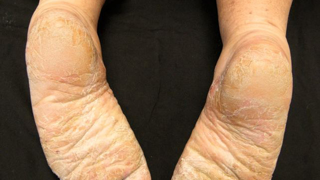 palmoplantar psoriasis treatment