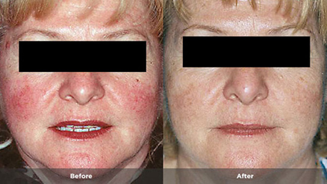 Rosacea Types Causes And Remedies