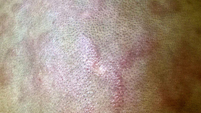 Seborrheic Eczema and Crib Cap