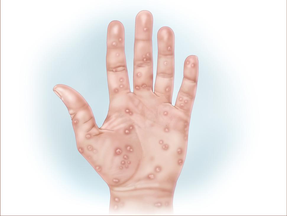 Secondary Syphilis: Causes, Symptoms & Diagnosis